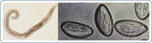 Picture on left is of a male pinworm and picture of pinworm eggs is on right